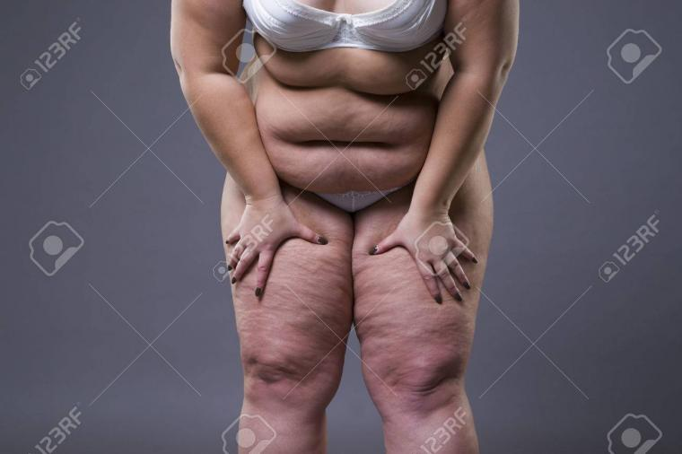 Overweight Woman With Fat Legs Obesity Female Body On Gray