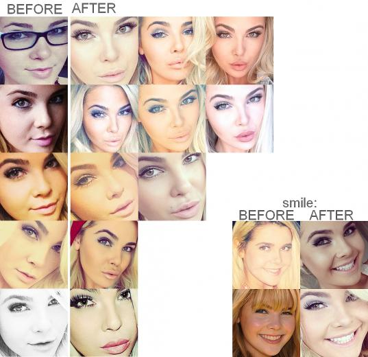 Destinee monroe And Paris monroe imagens Paris Monroe Botox Before