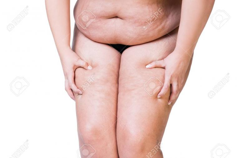 Overweight Woman With Fat Thighs Obesity Female Legs Isolated