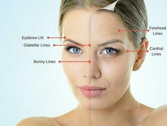 How a Dermatologist Can Make Wrinkles Fade